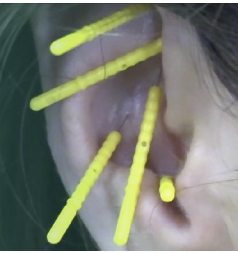 Era acupuncture